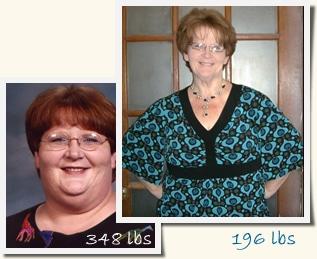 Karen Roux-en-Y Gastric Bypass