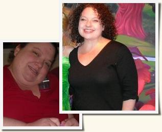 Rhonda Roux-en-Y Gastric Bypass