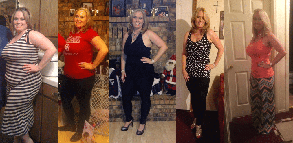 Weight Loss Surgery Results: Wendy