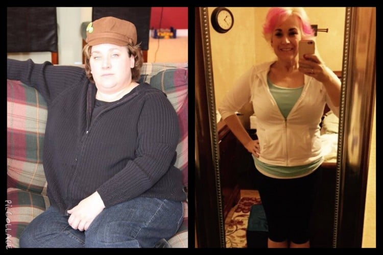 Weight Loss Surgery Results: Katherine