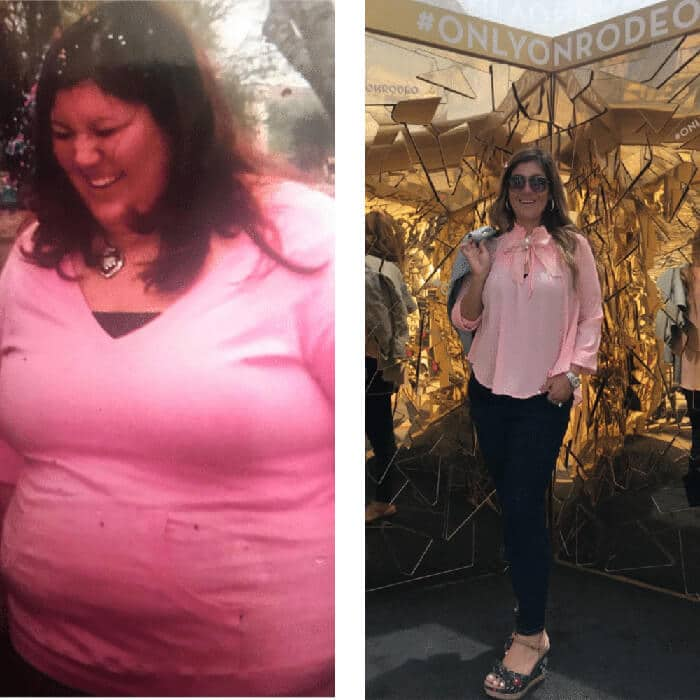 Vanessa - before and after Duodenal Switch