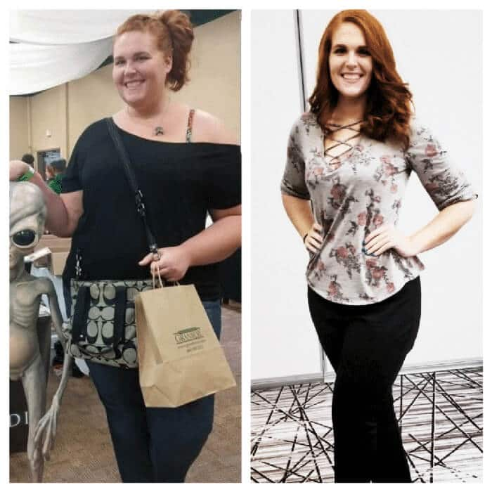 Heidi - before and after Sleeve Gastrectomy