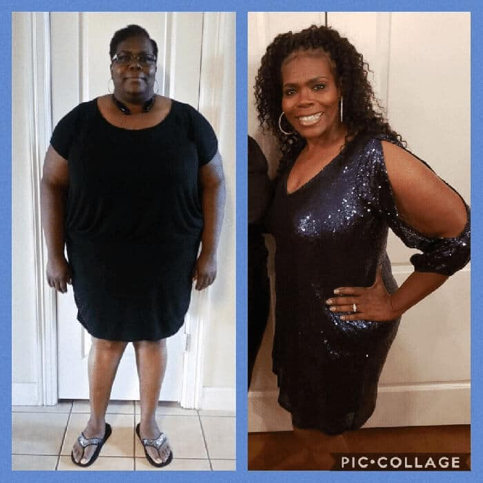 Lynn - before and after duodenal switch
