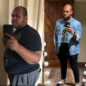 Deon - before and after duodenal switch procedure