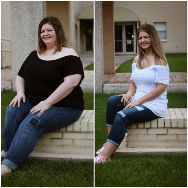 Brandolyn - before and after bariatric surgery