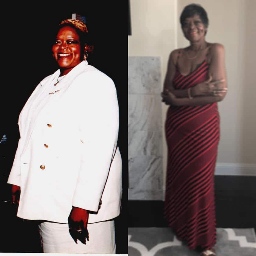 Phyllis - before and after bariatric surgery